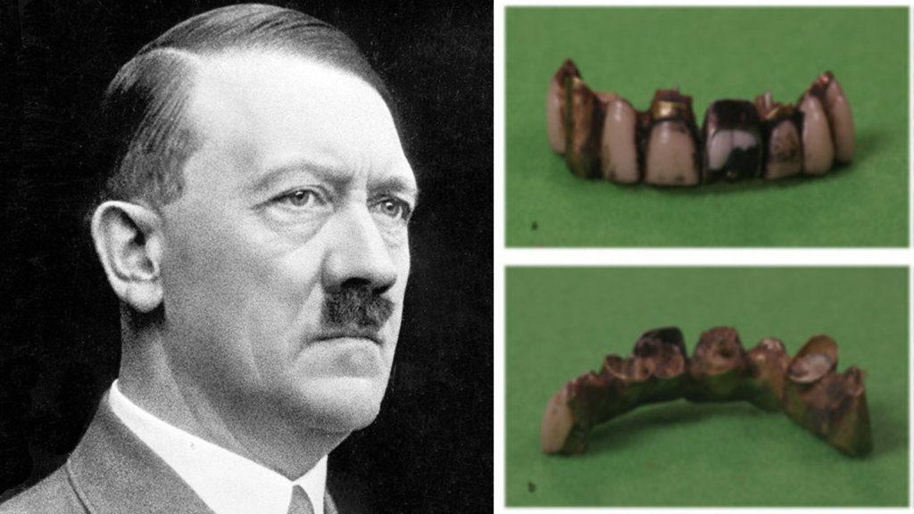 Adolf_teeth