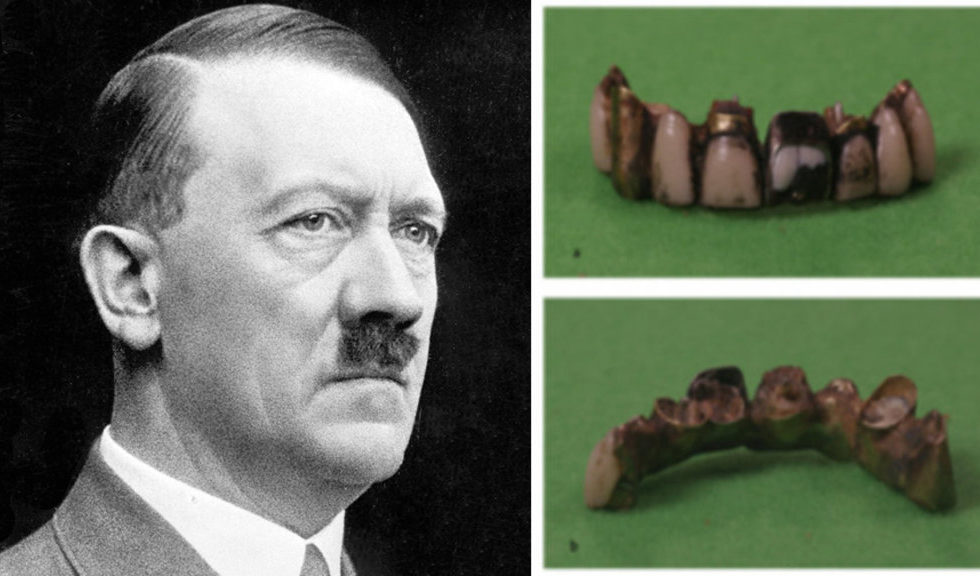 Adolf_teeth